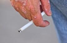 Žvynelinė. Odos ligos simptomai ir gydymas