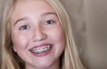 Kreivi vaiko dantukai ‒ ką daryti? Interviu su ortodonte Simona Rakauskaite