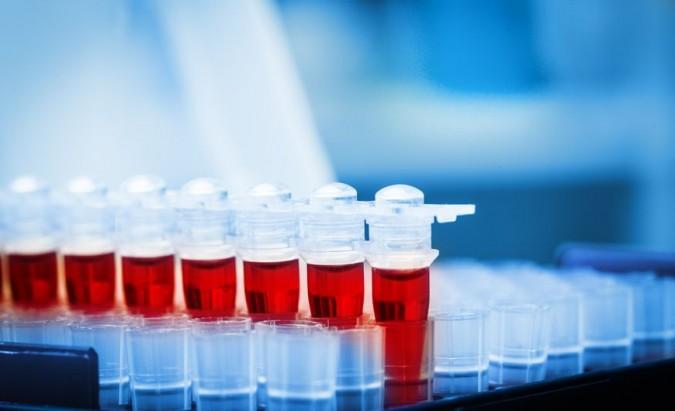 Prostatos specifinis antigenas. PSA testo privalumai ir trūkumai