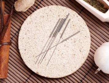 Akupunktūros taikymas Vakarų medicinoje