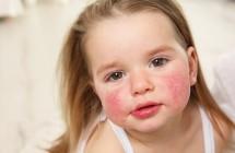 Alergija maistui - pasveikti įmanoma?