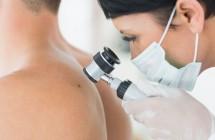 Odos vėžys. Nuotraukos, savitikra ir onkologės komentarai