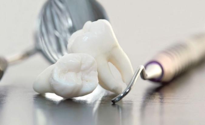 Protinių dantų rovimas – kada tai daryti būtina?