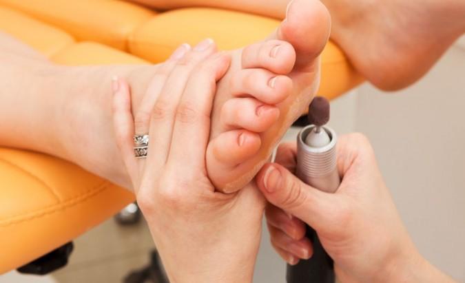 Onichomikozės fotodinaminė terapija