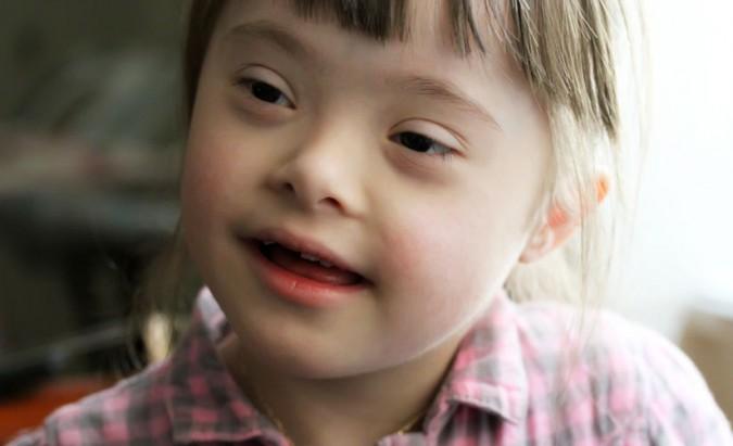 Dauno sindromo tikimybė ir diagnostiniai tyrimai