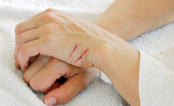 Kaip išvengti kačių įdrėskimų sukeliamų infekcijų?