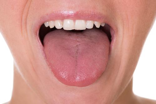 Kas tos stomatito ir burnos gleivinės opos?