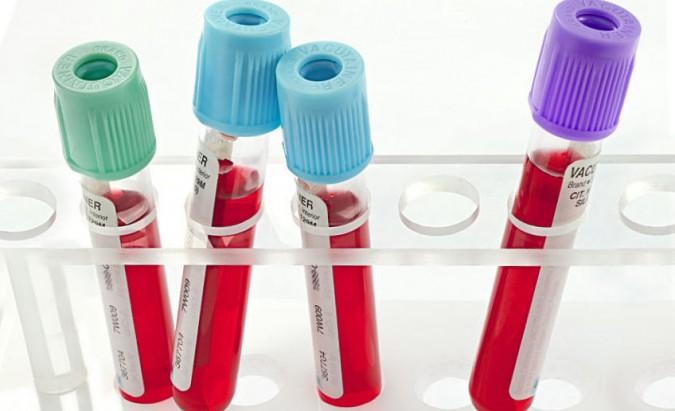 Pagrindiniai kraujo rodikliai. Ką jie reiškia?