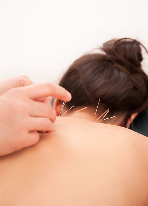 akupunktūra sergant hipertenzija kokį diuretiką vartoti esant hipertenzijai