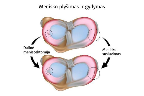 Suaugusiųjų kojų skausmas