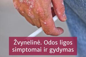 Vidutinio sunkumo ir sunkios psoriazės valdymas sergant gretutinėmis medžiagų apykaitos ligomis
