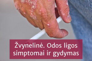 hipertenzijos gydymas psoriaze)