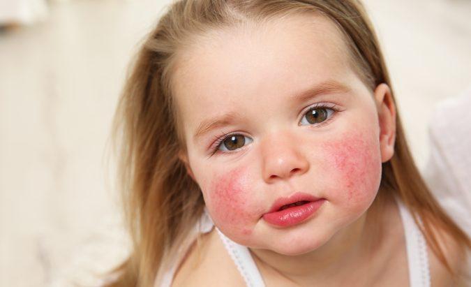 hipertenzija alergija vaistams